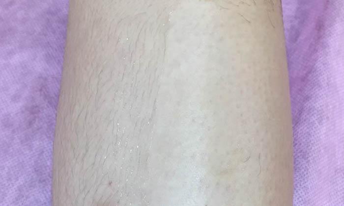 腿部熱蠟除毛